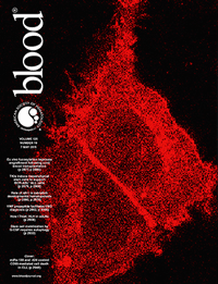 Science Journal: Blood - The American Society of Hematology